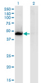 Western blot of NR1H3 expression in transfected 293T cell line by NR1H3 monoclonal antibody.