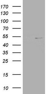 NR2C1 Antibody - HEK293T cells were transfected with the pCMV6-ENTRY control (Left lane) or pCMV6-ENTRY NR2C1 (Right lane) cDNA for 48 hrs and lysed. Equivalent amounts of cell lysates (5 ug per lane) were separated by SDS-PAGE and immunoblotted with anti-NR2C1.