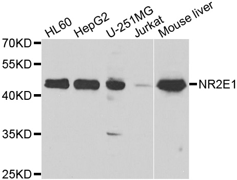 NR2E1 / TLX Antibody - Western blot analysis of extracts of various cell lines.