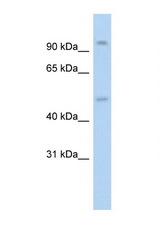 NR3C1 / Glucocorticoid Receptor antibody Western blot of HepG2 Cell lysate. Antibody concentration 1 ug/ml. This image was taken for the unconjugated form of this product. Other forms have not been tested.