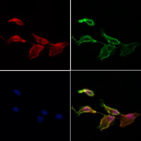 NRDE2 / C14orf102 Antibody - Staining HeLa cells by IF/ICC. The samples were fixed with PFA and permeabilized in 0.1% Triton X-100, then blocked in 10% serum for 45 min at 25°C. Samples were then incubated with primary Ab(1:200) and mouse anti-beta tubulin Ab(1:200) for 1 hour at 37°C. An AlexaFluor594 conjugated goat anti-rabbit IgG(H+L) Ab(1:200 Red) and an AlexaFluor488 conjugated goat anti-mouse IgG(H+L) Ab(1:600 Green) were used as the secondary antibod