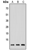 NRG4 Antibody - Western blot analysis of NRG4 expression in HEK293T (A); Raw264.7 (B); H9C2 (C) whole cell lysates.