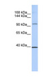 REST antibody Western blot of MCF7 cell lysate. This image was taken for the unconjugated form of this product. Other forms have not been tested.