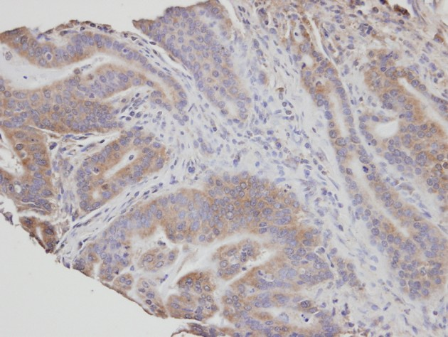 IHC of paraffin-embedded T (gastric CA) using NSMAF antibody at 1:100 dilution.