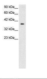 NT5C3A Antibody - HepG2 Cell Lysate.  This image was taken for the unconjugated form of this product. Other forms have not been tested.