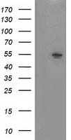 NT5DC1 Antibody - HEK293T cells were transfected with the pCMV6-ENTRY control (Left lane) or pCMV6-ENTRY NT5DC1 (Right lane) cDNA for 48 hrs and lysed. Equivalent amounts of cell lysates (5 ug per lane) were separated by SDS-PAGE and immunoblotted with anti-NT5DC1.