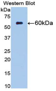 Western blot of recombinant NT5E / eNT / CD73.