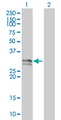 Western Blot analysis of NT5E expression in transfected 293T cell line by NT5E monoclonal antibody (M01), clone 4C4-2B5.Lane 1: NT5E transfected lysate(30.36 KDa).Lane 2: Non-transfected lysate.