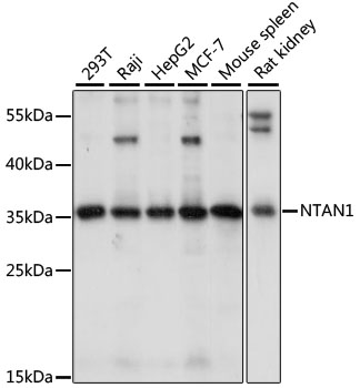 NTAN1 / PNAD Antibody - Western blot analysis of extracts of various cell lines, using NTAN1 antibody at 1:1000 dilution. The secondary antibody used was an HRP Goat Anti-Rabbit IgG (H+L) at 1:10000 dilution. Lysates were loaded 25ug per lane and 3% nonfat dry milk in TBST was used for blocking. An ECL Kit was used for detection and the exposure time was 10s.