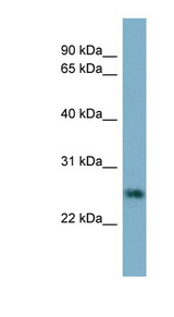 NTF4 / Neurotrophin 4 antibody LS-C107915 Western blot of HT1080 cell lysate.  This image was taken for the unconjugated form of this product. Other forms have not been tested.
