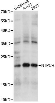 NTPCR / C1orf57 Antibody - Western blot analysis of extracts of various cell lines, using NTPCR antibody at 1:1000 dilution. The secondary antibody used was an HRP Goat Anti-Rabbit IgG (H+L) at 1:10000 dilution. Lysates were loaded 25ug per lane and 3% nonfat dry milk in TBST was used for blocking. An ECL Kit was used for detection and the exposure time was 10s.