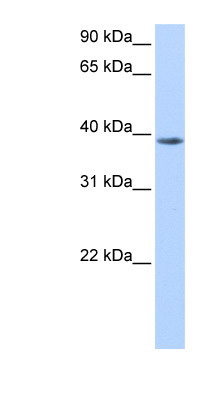 NUDT13 antibody LS-C81295 Western blot of HepG2 cell lysate.  This image was taken for the unconjugated form of this product. Other forms have not been tested.