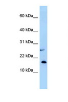 NUDT15 Antibody - NUDT15 antibody Western blot of Small Intestine lysate. Antibody concentration 1 ug/ml.  This image was taken for the unconjugated form of this product. Other forms have not been tested.