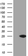 NUDT15 Antibody - HEK293T cells were transfected with the pCMV6-ENTRY control. (Left lane) or pCMV6-ENTRY NUDT15. (Right lane) cDNA for 48 hrs and lysed. Equivalent amounts of cell lysates. (5 ug per lane) were separated by SDS-PAGE and immunoblotted with anti-NUDT15. (1:2000)