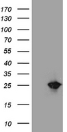 NUDT15 Antibody - HEK293T cells were transfected with the pCMV6-ENTRY control. (Left lane) or pCMV6-ENTRY NUDT15. (Right lane) cDNA for 48 hrs and lysed