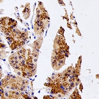 NUDT15 Antibody - Immunohistochemical analysis of NUDT15 staining in human stomach formalin fixed paraffin embedded tissue section. The section was pre-treated using heat mediated antigen retrieval with sodium citrate buffer (pH 6.0). The section was then incubated with the antibody at room temperature and detected using an HRP conjugated compact polymer system. DAB was used as the chromogen. The section was then counterstained with hematoxylin and mounted with DPX.