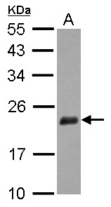 Sample (30 ug of whole cell lysate) A: IMR32 12% SDS PAGE NUDT3 antibody diluted at 1:1000