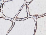IHC of paraffin-embedded Human thyroid tissue using anti-NUDT6 mouse monoclonal antibody.