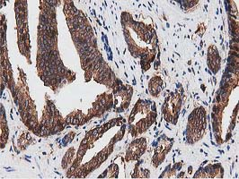 IHC of paraffin-embedded Carcinoma of Human prostate tissue using anti-NUDT6 mouse monoclonal antibody.