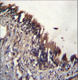 NUDT9 Antibody immunohistochemistry of formalin-fixed and paraffin-embedded human lung tissue followed by peroxidase-conjugated secondary antibody and DAB staining.