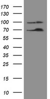 NUMB Antibody - HEK293T cells were transfected with the pCMV6-ENTRY control (Left lane) or pCMV6-ENTRY NUMB (Right lane) cDNA for 48 hrs and lysed. Equivalent amounts of cell lysates (5 ug per lane) were separated by SDS-PAGE and immunoblotted with anti-NUMB.
