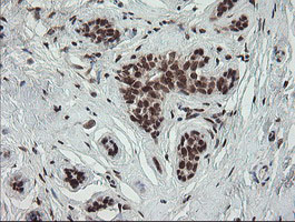 NUMB Antibody - IHC of paraffin-embedded Human breast tissue using anti-NUMB mouse monoclonal antibody.