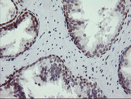 NUMB Antibody - IHC of paraffin-embedded Human prostate tissue using anti-NUMB mouse monoclonal antibody.