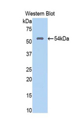 Western blot of recombinant NUP188.  This image was taken for the unconjugated form of this product. Other forms have not been tested.