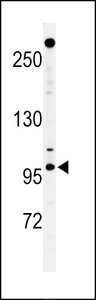 NUP210 / gp210 Antibody - Western blot of NUP210 Antibody in T47D cell line lysates (35 ug/lane). NUP210 (arrow) was detected using the purified antibody.
