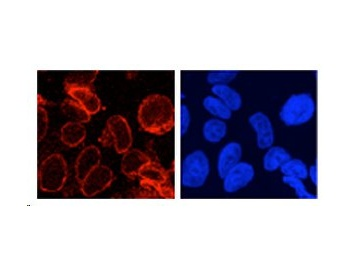 Immunocytochemistry/ Immunofluorescence - GP210 antibody on formaldehyde fixed HeLa cells