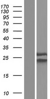 NUP62CL Protein - Western validation with an anti-DDK antibody * L: Control HEK293 lysate R: Over-expression lysate