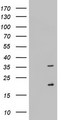 HEK293T cells were transfected with the pCMV6-ENTRY control (Left lane) or pCMV6-ENTRY NUS1 (Right lane) cDNA for 48 hrs and lysed. Equivalent amounts of cell lysates (5 ug per lane) were separated by SDS-PAGE and immunoblotted with anti-NUS1.