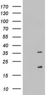 NUS1 Antibody - HEK293T cells were transfected with the pCMV6-ENTRY control (Left lane) or pCMV6-ENTRY NUS1 (Right lane) cDNA for 48 hrs and lysed. Equivalent amounts of cell lysates (5 ug per lane) were separated by SDS-PAGE and immunoblotted with anti-NUS1.