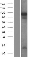 NUTM2F / FAM22F Protein - Western validation with an anti-DDK antibody * L: Control HEK293 lysate R: Over-expression lysate