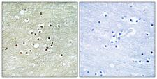 NXF / NPAS4 Antibody - Immunohistochemistry analysis of paraffin-embedded human brain tissue, using NPAS4 Antibody. The picture on the right is blocked with the synthesized peptide.