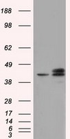 HEK293T cells were transfected with the pCMV6-ENTRY control (Left lane) or pCMV6-ENTRY NXNL2 (Right lane) cDNA for 48 hrs and lysed. Equivalent amounts of cell lysates (5 ug per lane) were separated by SDS-PAGE and immunoblotted with anti-NXNL2.