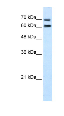 FAM55D antibody ARP45013_T100-NP_001071107-FAM55D(family with sequence similarity 55, member D) Antibody Western blot of Jurkat lysate.  This image was taken for the unconjugated form of this product. Other forms have not been tested.