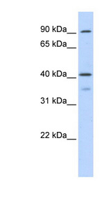 OAS1 antibody Western blot of Transfected 293T cell lysate. This image was taken for the unconjugated form of this product. Other forms have not been tested.