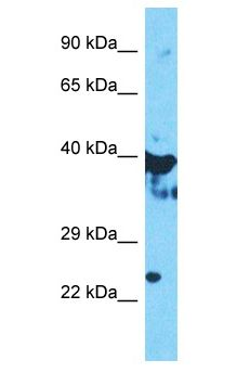 OAS1 Antibody - OAS1 antibody Western Blot of HepG2. Antibody dilution: 1 ug/ml.  This image was taken for the unconjugated form of this product. Other forms have not been tested.