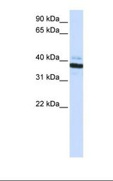 OAS1 Antibody - Fetal heart lysate. Antibody concentration: 1.0 ug/ml. Gel concentration: 12%.  This image was taken for the unconjugated form of this product. Other forms have not been tested.