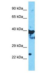 OAS1 antibody Western Blot of HepG2. Antibody dilution: 1 ug/ml.  This image was taken for the unconjugated form of this product. Other forms have not been tested.