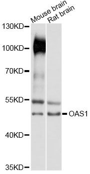 Western blot analysis of extracts of various cell lines, using OAS1 antibody at 1:3000 dilution. The secondary antibody used was an HRP Goat Anti-Rabbit IgG (H+L) at 1:10000 dilution. Lysates were loaded 25ug per lane and 3% nonfat dry milk in TBST was used for blocking. An ECL Kit was used for detection and the exposure time was 10s.