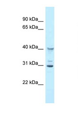 Oas1g Antibody - Oas1g antibody Western blot of Mouse Liver lysate. Antibody concentration 1 ug/ml.  This image was taken for the unconjugated form of this product. Other forms have not been tested.