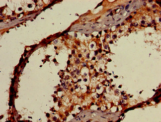 Immunohistochemistry of paraffin-embedded human testis tissue using OAS3 Antibody at dilution of 1:100