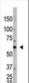 The anti-OASL C-term Antibody is used in Western blot to detect OASL in HL60 lysate.