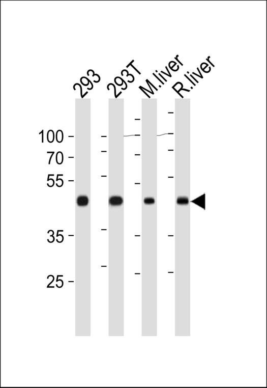 OAT Antibody western blot of 293,293T cell line ,mouse liver and rat liver tissue lysates (35 ug/lane). The OAT antibody detected the OAT protein (arrow).