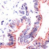OCLN / Occludin Antibody - Human Lung stained with Anti-Occludin