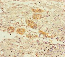 OGDH Antibody - Immunohistochemistry of paraffin-embedded human pancreatic cancer using OGDH Antibody at dilution of 1:100