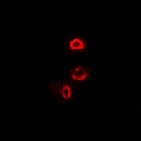 OGDH Antibody - Immunofluorescent analysis of OGDH staining in U2OS cells. Formalin-fixed cells were permeabilized with 0.1% Triton X-100 in TBS for 5-10 minutes and blocked with 3% BSA-PBS for 30 minutes at room temperature. Cells were probed with the primary antibody in 3% BSA-PBS and incubated overnight at 4 deg C in a humidified chamber. Cells were washed with PBST and incubated with a DyLight 594-conjugated secondary antibody (red) in PBS at room temperature in the dark.