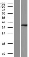 OLAH Protein - Western validation with an anti-DDK antibody * L: Control HEK293 lysate R: Over-expression lysate